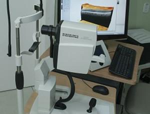 Tomógrafo De Coerência Óptica – OCT SPECTRALIS (HEILDELBERG ENGINEERING)