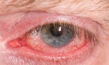 Half closed red and irritated eye with blood vessels
