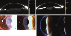 Fig-2-Scheimpflug-images-from-the-Pentacam-of-a-cornea-with-moderate-haze-after-flap