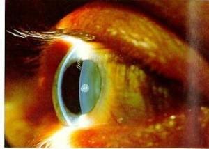 testează-mi viziunea presbiopia restabilește vederea